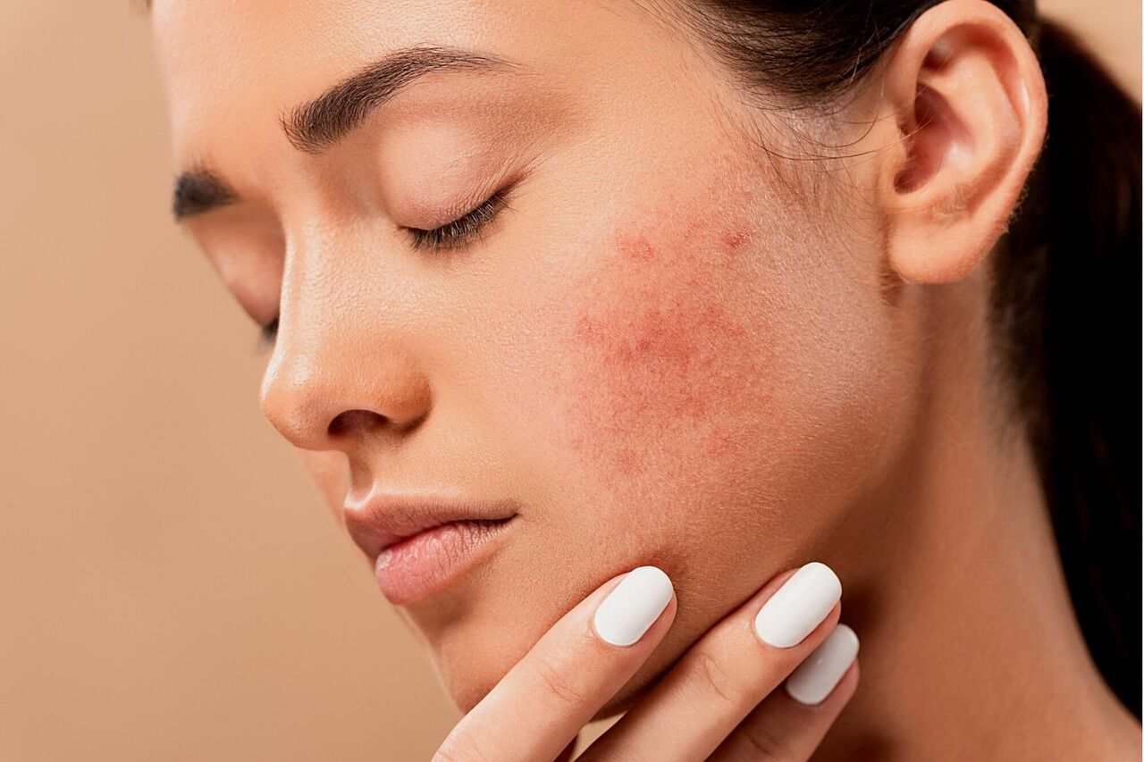 The Ugly Side-Effects of Top Acne Prescriptions