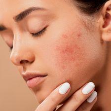 acne-5561750_1280
